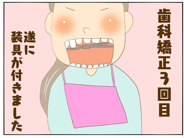 娘の適応能力の高さに拍子抜け(笑)ドキドキの歯科矯正スタート ちょびの育児日記