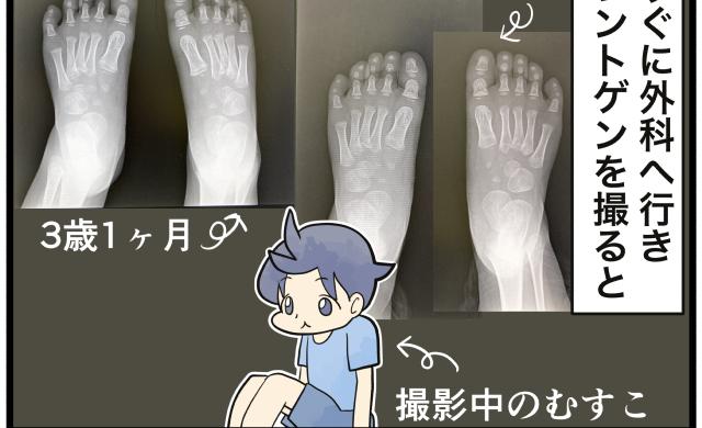 足の小指が曲がってる!内反小趾って何!?一石三鳥だった外科受診|ぽんぽこむすこの成長絵日記。